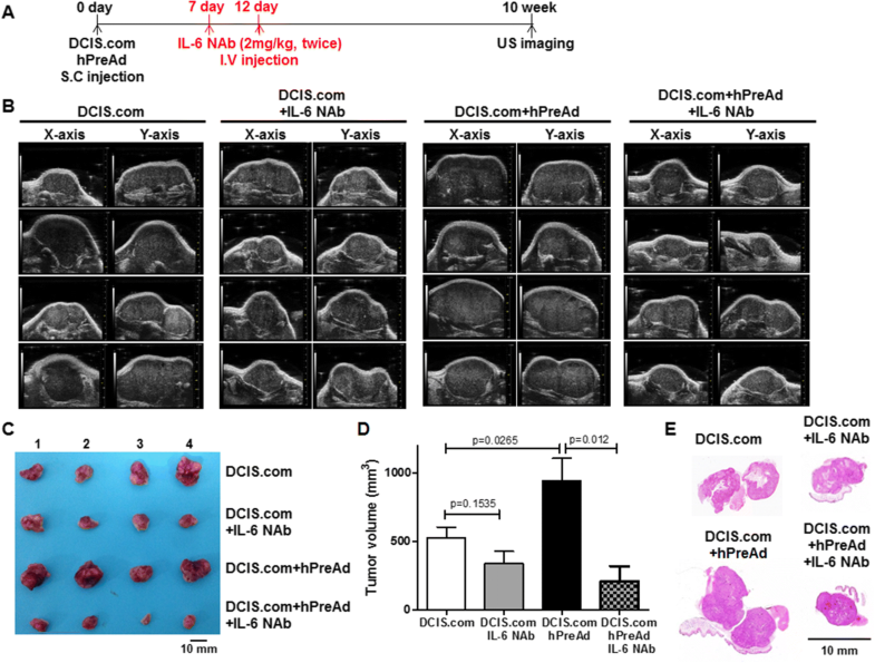 Il-6-Mediated Cross-Talk Between Human Preadipocytes And Ductal Carcinoma In Situ In -1664