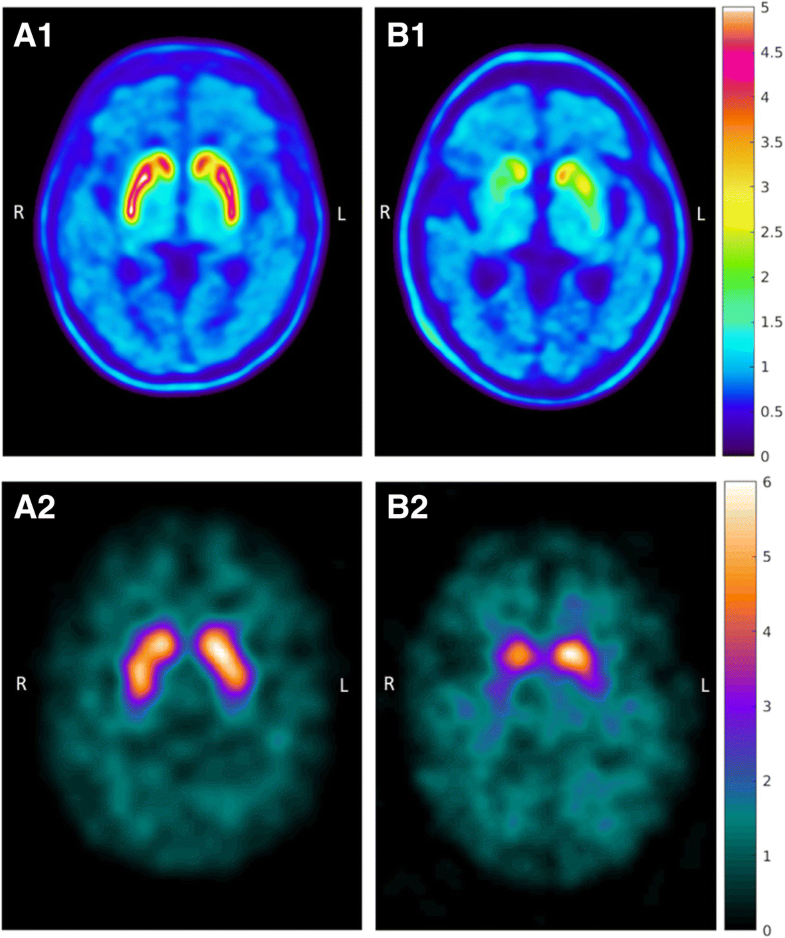 [123I]beta-CIT SPECT imaging assessment of the rate of ...