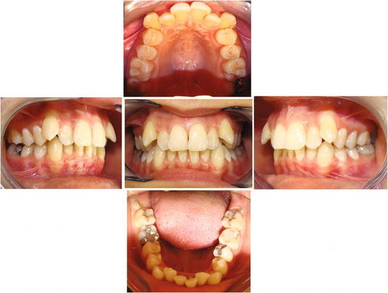 A comparative study of two different clear aligner systems