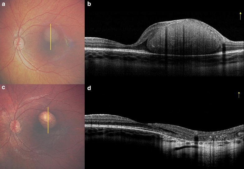 spectral domain optical coherence tomography thesis Development of fourier domain optical coherence tomography for applications in developmental biology by  121.