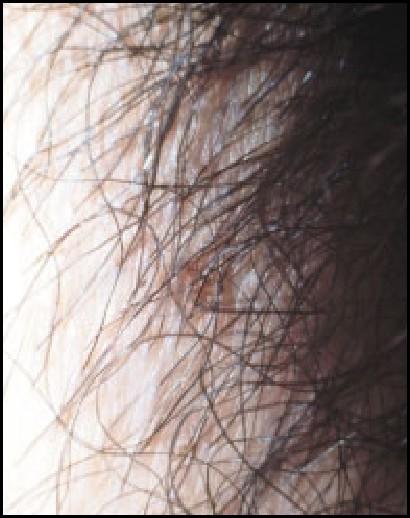 Parasitic Skin Infections in the Elderly | SpringerLink