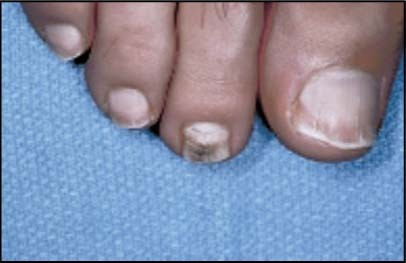 Dermatologic Disorders of the Athlete | SpringerLink