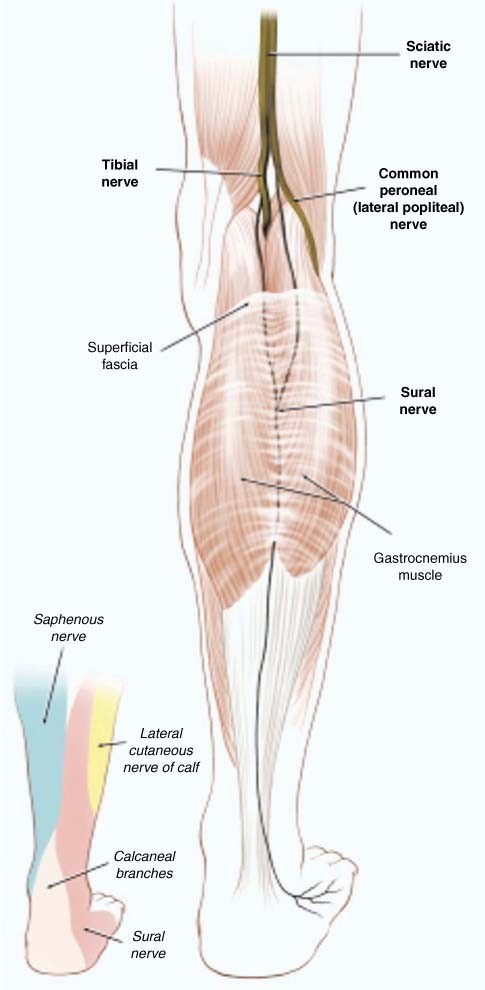 Nerve Entrapments Of The Lower Leg Ankle And Foot In Sport