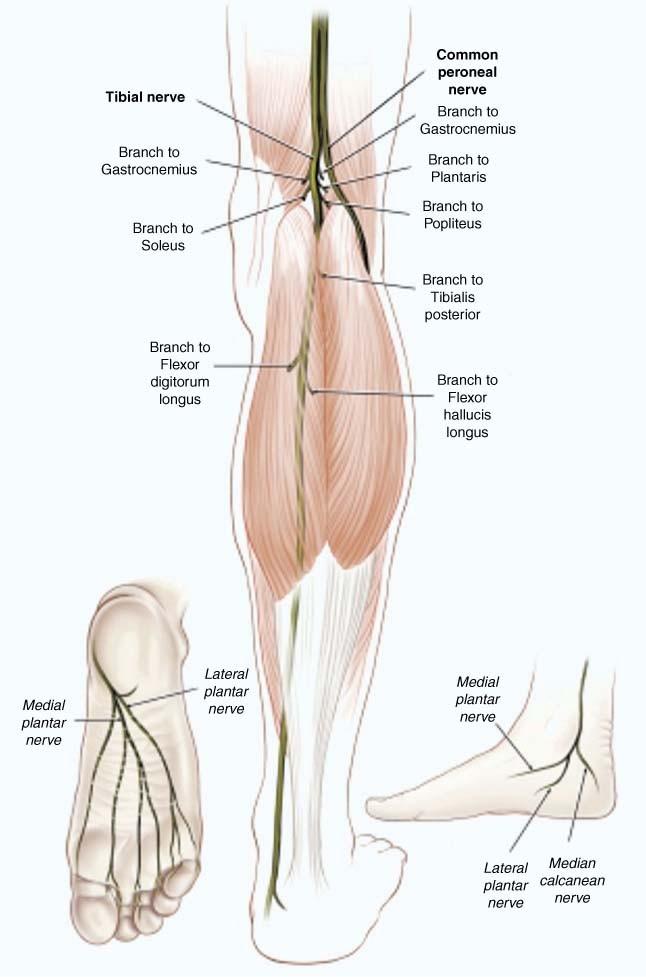 Nice Sartorius Tendonitis Pictures - Human Anatomy Images ...