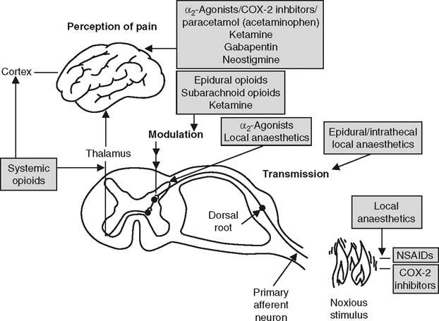 Perioperative Pain Management | SpringerLink