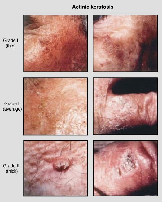 New Approaches to the Treatment of Actinic Keratosis