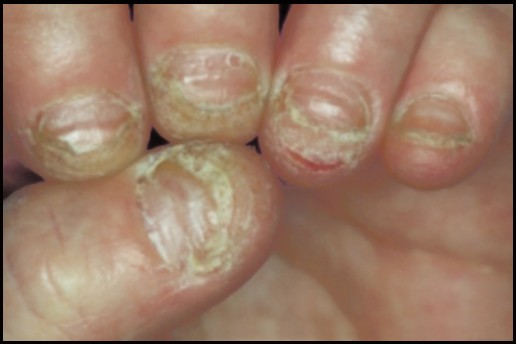 Patch Testing To Identify Reactions Sculptured Artificial Nails