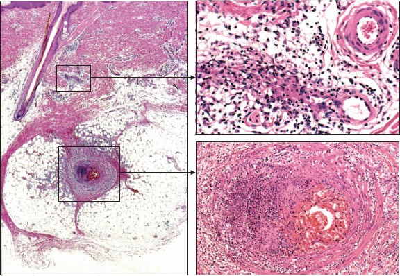 Clinical Approach to Cutaneous Vasculitis | SpringerLink