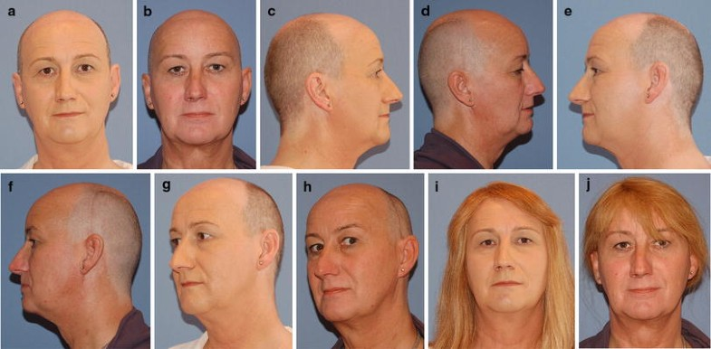 Frontal Bone Remodeling For Gender Reassignment Of The -1848