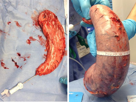 Comparison Between Orogastric Tube  Bougie And A Suction