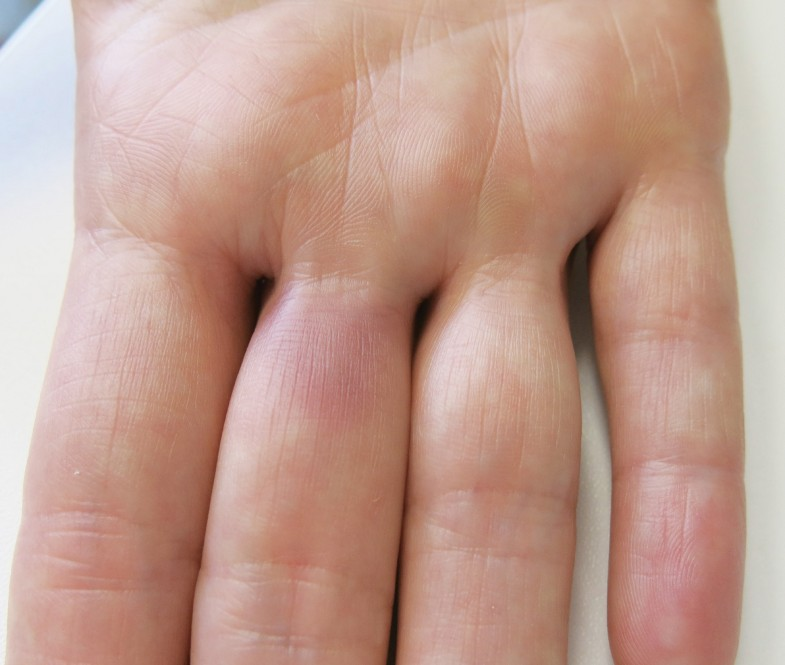 Woher kommen die Schmerzen und Hämatome?   SpringerLink