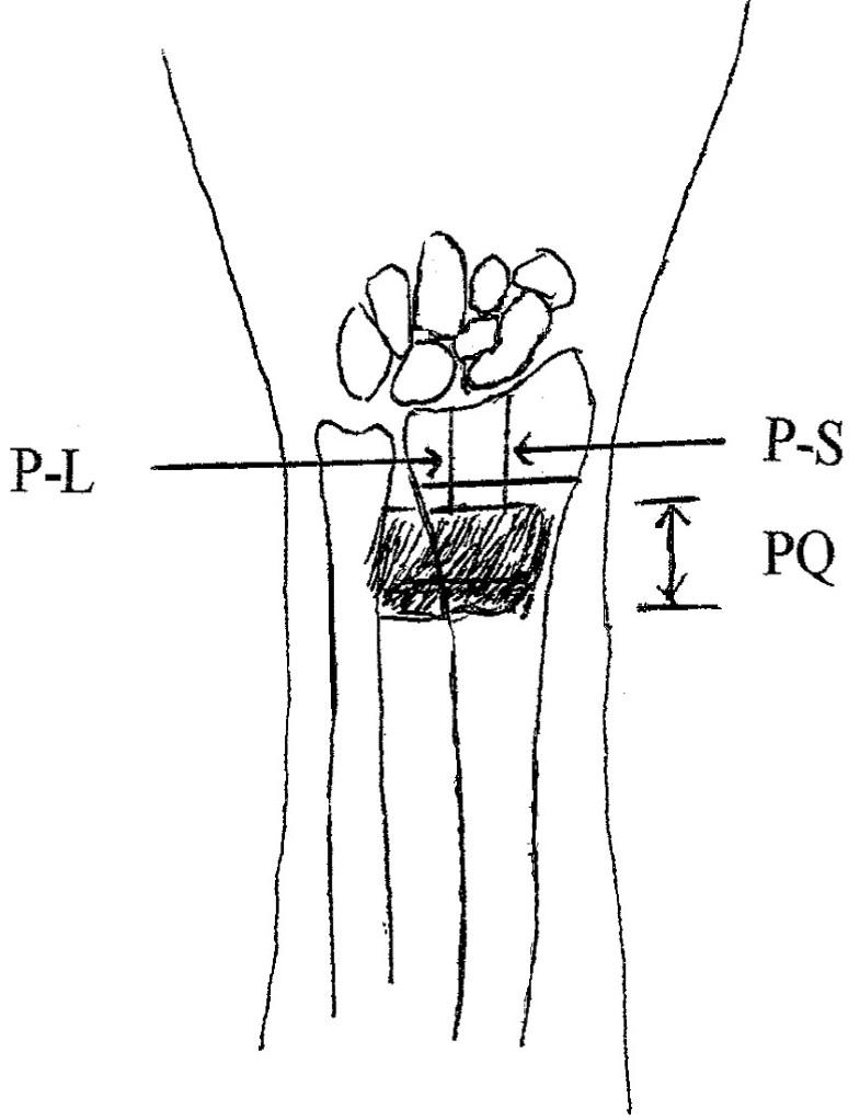 clinical study of the pronator quadratus muscle