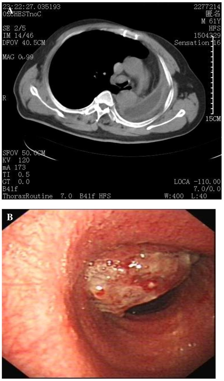Image-guided bronchoscopy for histopathologic diagnosis of ...