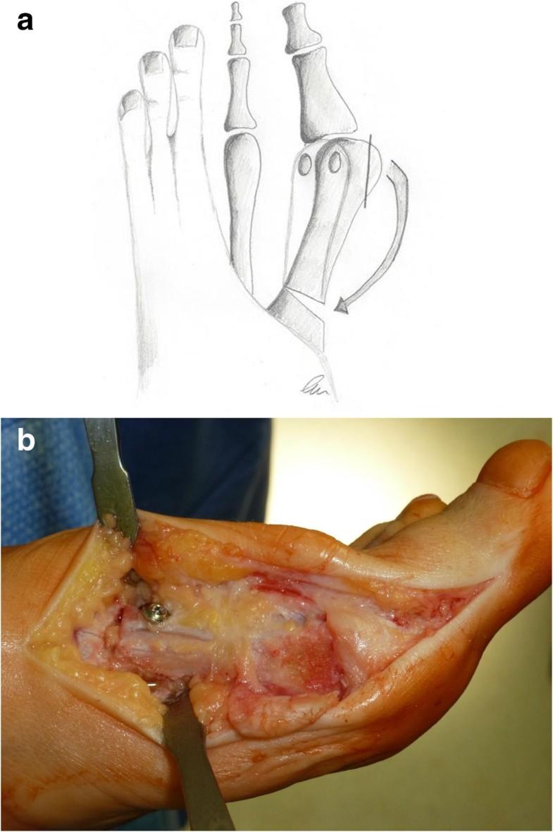 Proximal Metatarsal Osteotomy For Hallux Valgus  An Audit