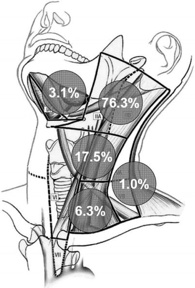 Oropharyngeal Carcinoma | SpringerLink