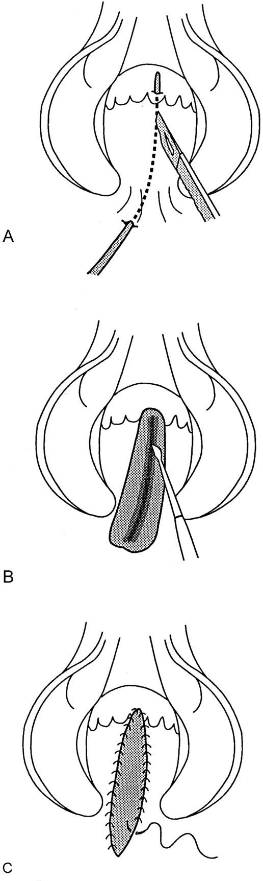 Benign Anorectal: Abscess and Fistula | SpringerLink