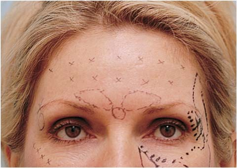 Frontalis Treatment with Botox | SpringerLink