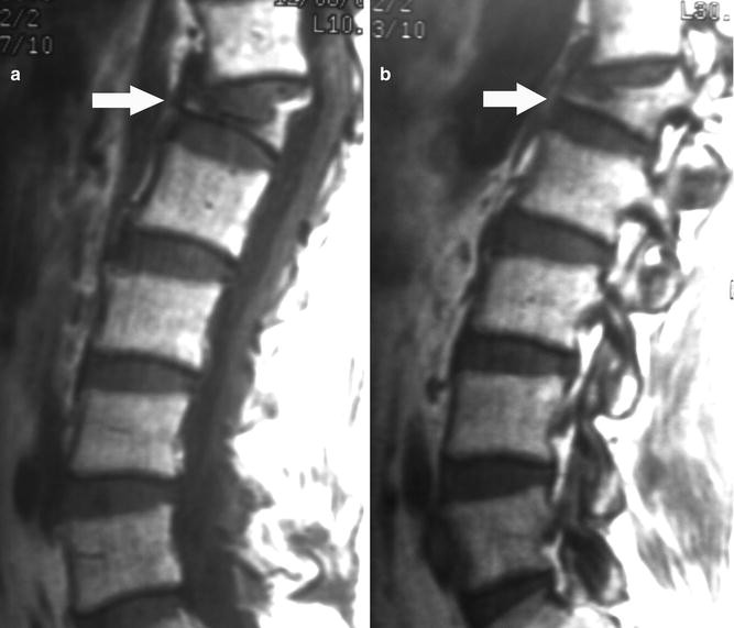 Percutaneous Vertebroplasty   SpringerLink