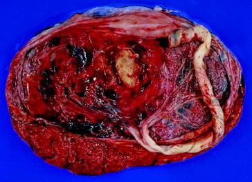 Diseases of the Placenta | SpringerLink