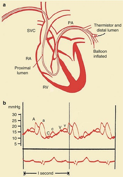 Coronary Heart Disease Syndromes Pathophysiology And Clinical