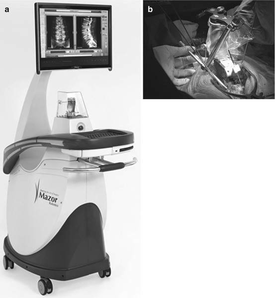 Image and Robotic Guidance in Spine Surgery | SpringerLink