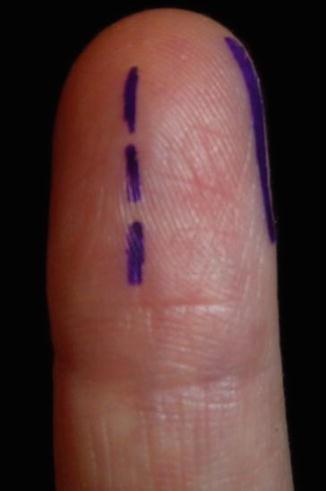 Hand Infections | SpringerLink
