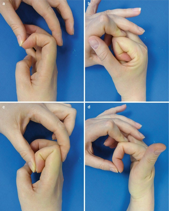 Post-Traumatic Contracture | SpringerLink