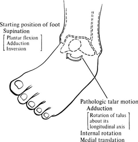 Supination-Adduction Injuries | SpringerLink