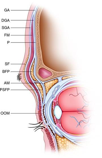 Adjunctive Procedures in Upper Eyelid Blepharoplasty: Internal Brow