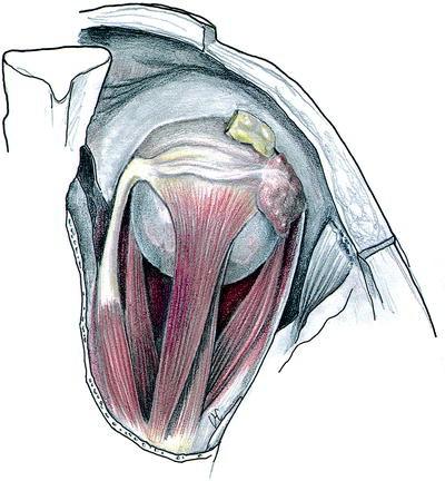 Anatomy of the ocular adnexa orbit and related facial structures open image in new window fandeluxe Gallery
