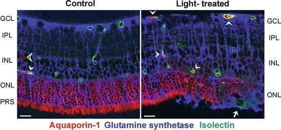 Retina: Neuroanatomy and Physiology | SpringerLink