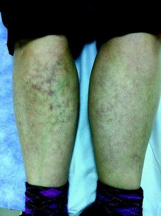 Task Force Report on Non-criteria Manifestations: Skin