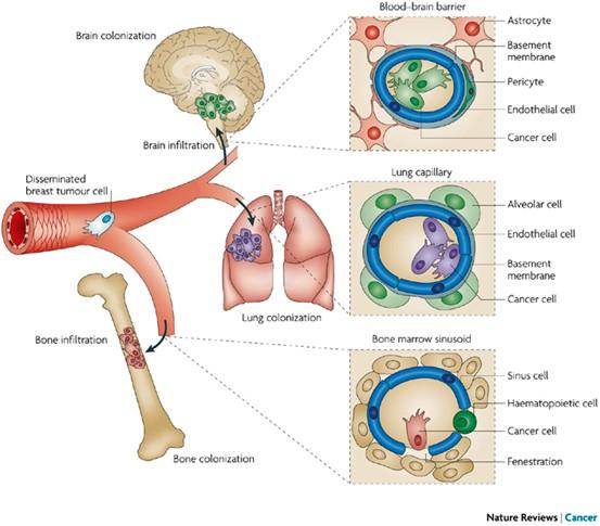 hematogenous dissemination