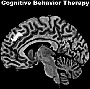 How Psychotherapy Changes the Brain | SpringerLink