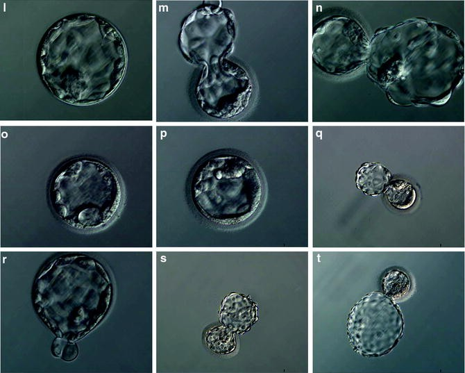 Morphological Assessment of Blastocyst Stage Embryos: Types of