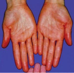 Metabolic Hyperpigmentation: Carotenemia, Pernicious ...