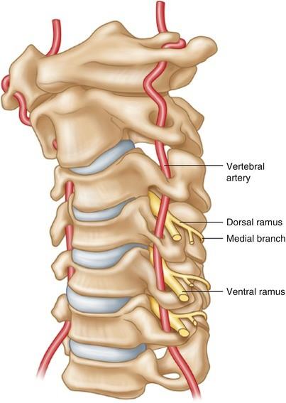 Cervical Facet Syndrome Cervical Medial Branch Block And