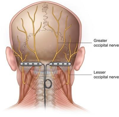 Occipital Nerve Stimulation for Head Pain: Surgical Leads | SpringerLink