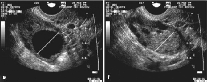 Ultrasound in follicle monitoring for ovulation inductioniui open image in new window open image in new window fandeluxe Choice Image