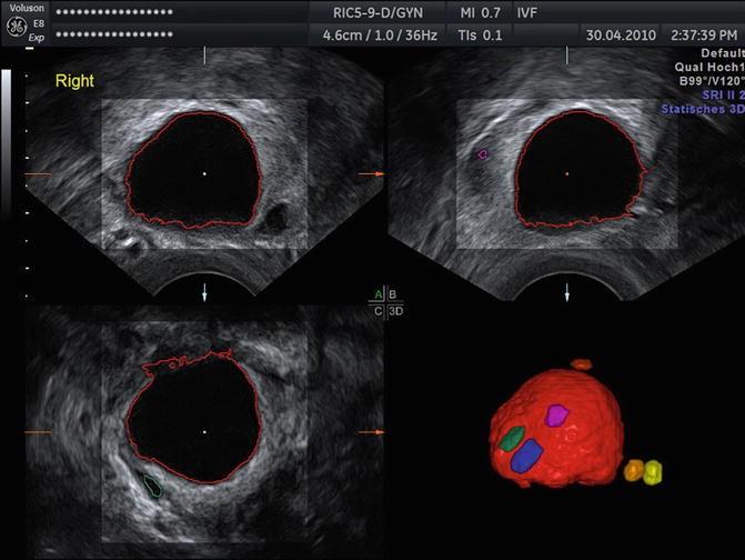 3D Ultrasound for Follicle Monitoring in ART | SpringerLink