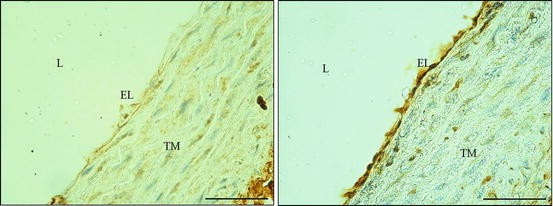 Immunohistochemistry on Rodent Circulatory System: Its Possible Use on