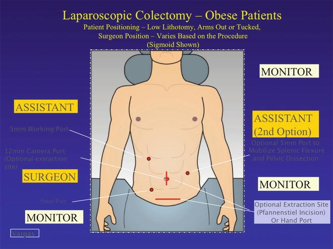 Laparoscopic Colectomy in the Obese Patient | SpringerLink