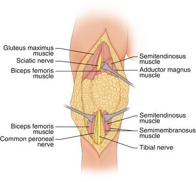 Tumor in the Posterior Thigh | SpringerLink