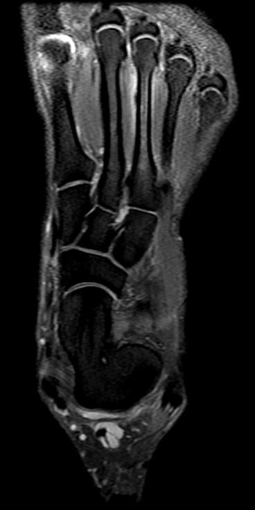 Lower Leg, Ankle, and Foot Injuries | SpringerLink