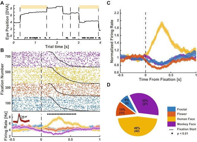 Surgical and Electrophysiological Techniques for Single-Neuron