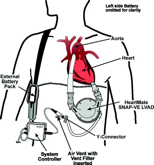 Animal Models For Cardiac Research