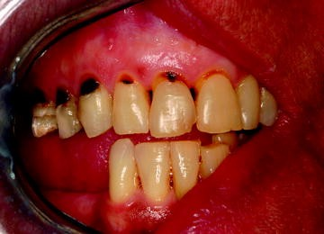 Oral Infections | SpringerLink