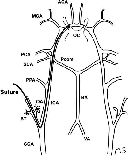 A Rat Middle Cerebral Artery Occlusion Model And Intravenous