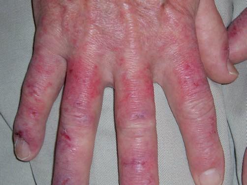Systemic Lupus Erythematosus | SpringerLink
