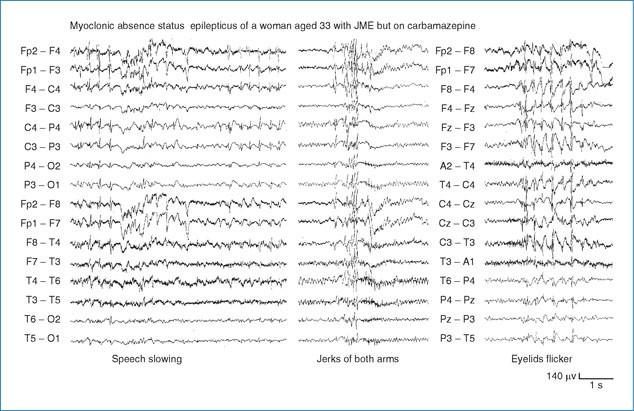 Juvenile Myoclonic Epilepsy | SpringerLink
